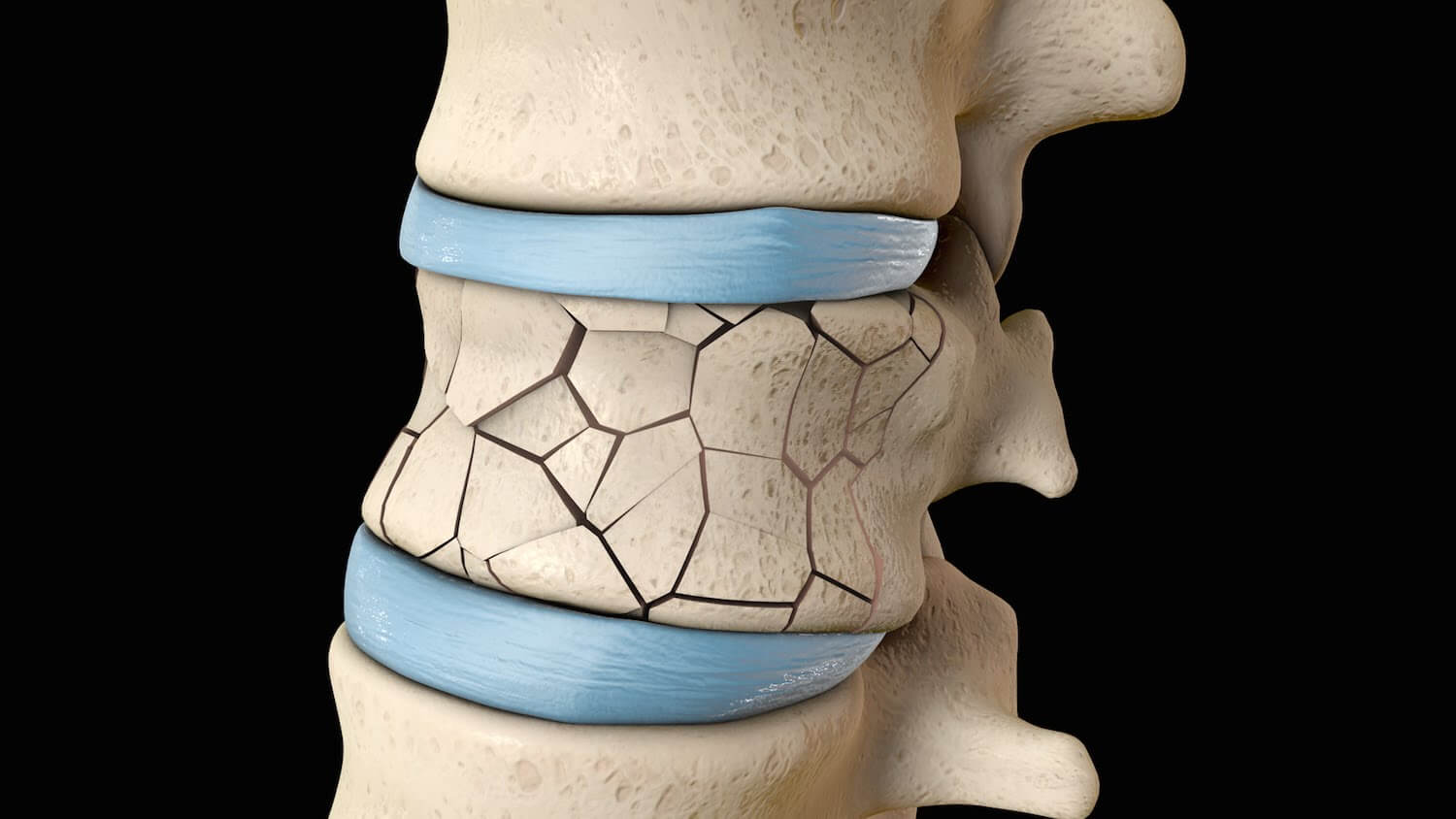 Why Kyphoplasty is the Best Option for Spinal Compression Fractures
