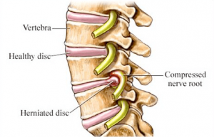 Disc Herniation and Treatments